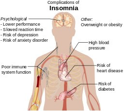 Natural – Home Remedies for Insomnia