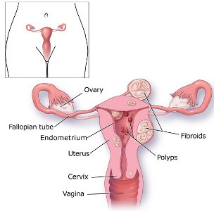 Menorrhagia-Excessive Blood Discharge-Raqta Pradar- रक्त प्रदर