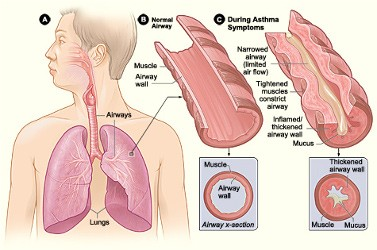 Asthma-Difficulty in Breathing-Dyspepsia