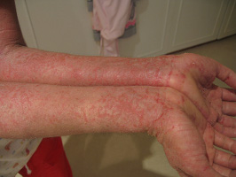 Dry-Itchy-Inflamed Skin-Eczema