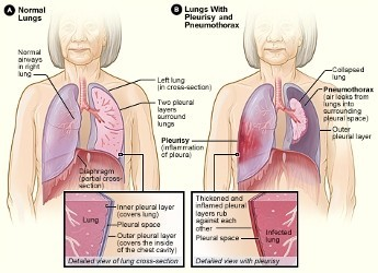 Pleurisy and Pneumothorax - Natural Ayurvedic remedies