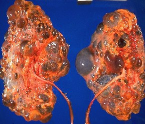 Kidney Malfunction-Failure Ex. Polycystic Kidneys