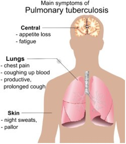Tuberculosis-Symptoms